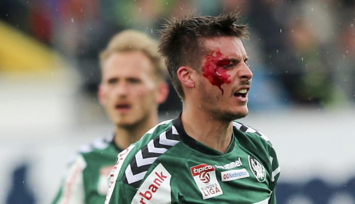 Clemens Walch nurses a cut to his face during the game against Rapid Wien (picture courtesy of APA pictures)